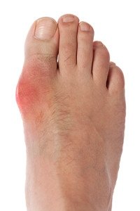 Who is Most Likely To Aquire Gout?